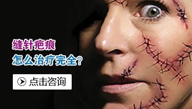 脸上的痤疮疤痕怎么去除呢