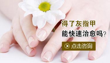 治疗灰指甲贵吗