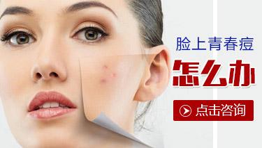 贵州青春痘患者的日常护理