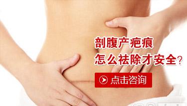 女性妊娠疤痕能修复好吗