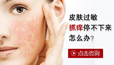 荨麻疹常见的病因